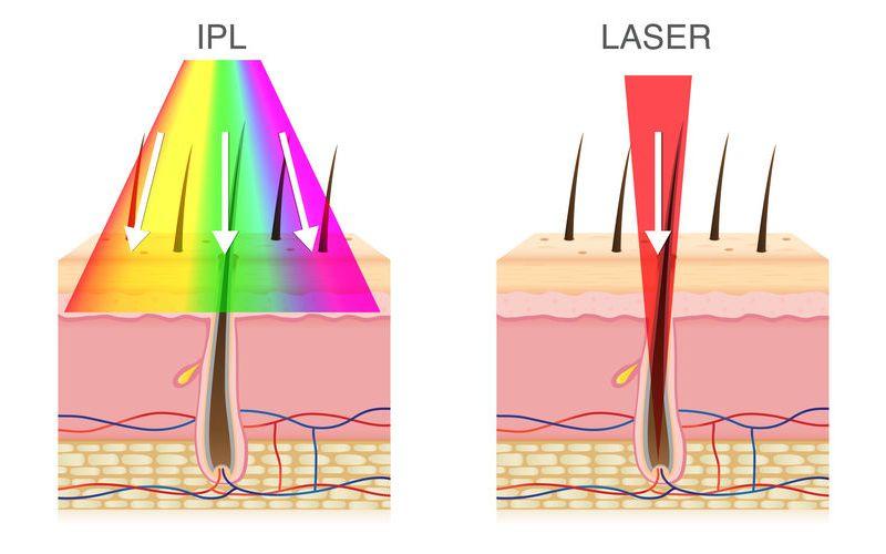 ipl vs laser rays