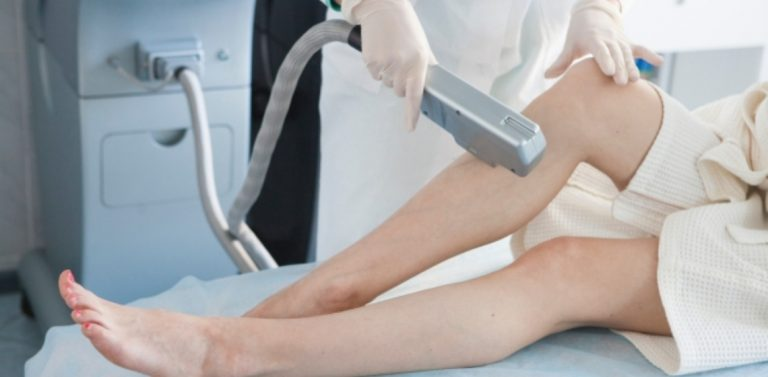 ipl vs laser hair removal
