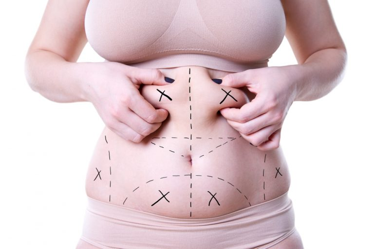 fat liposuction clinics in malaysia