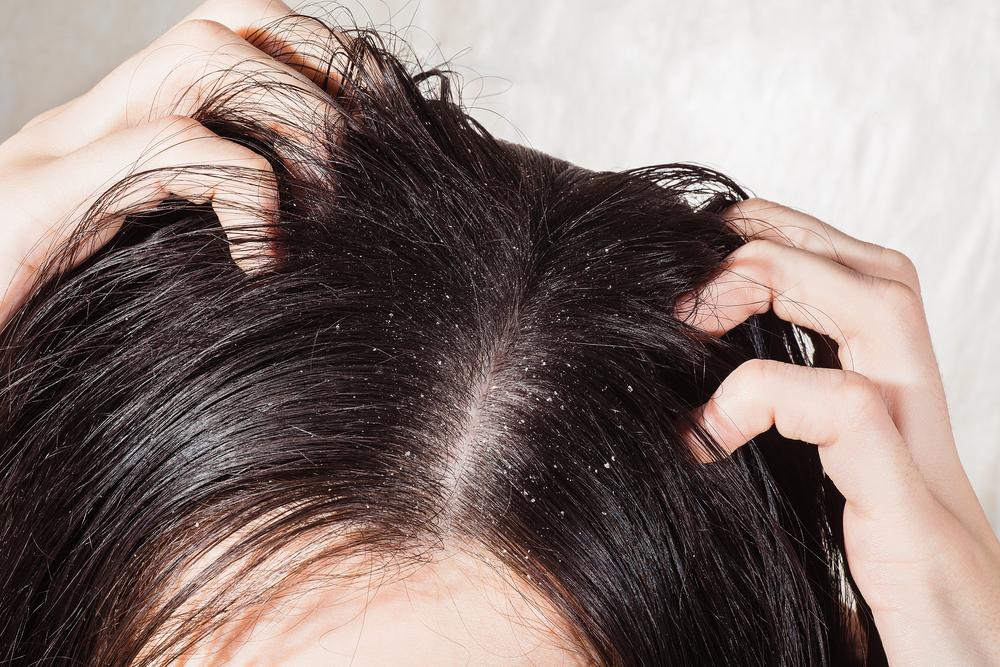 anti-dandruff shampoos in Malaysia