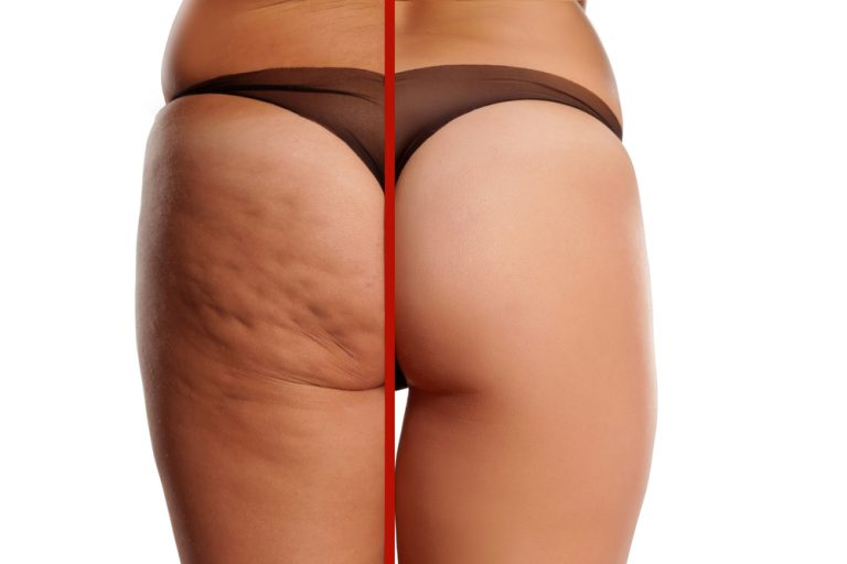 Cellulite Treatments in Malaysia