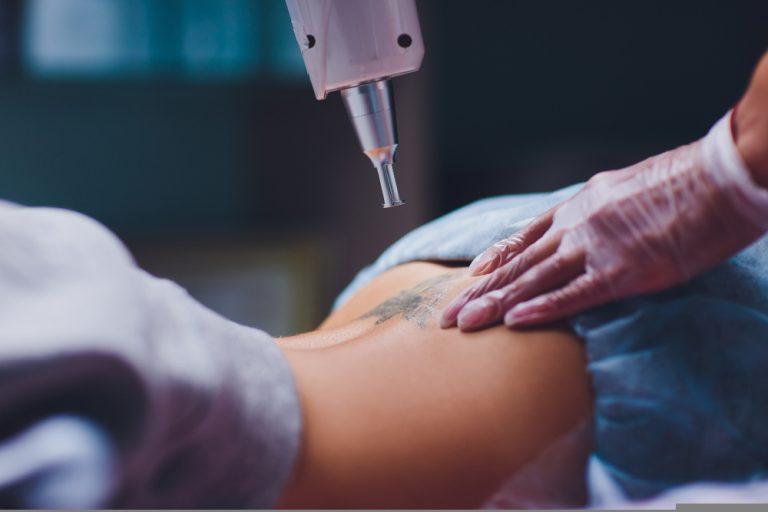 tattoo removal in malaysia